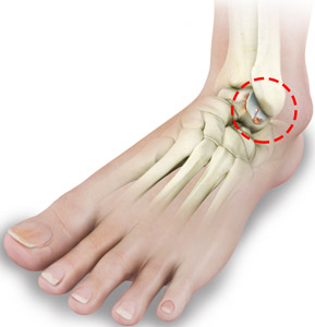 Rheumatoid Arthritis of the Foot and Ankle